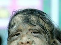 Гипертрихоз (син.: волосатость)